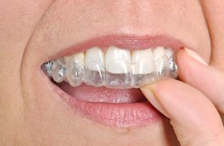 woman using clear aligners