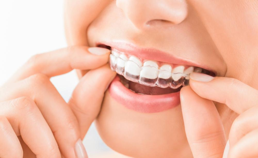 Woman using Invisalign | Barrie ON Dentist