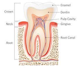 Diagram of root canal therapy | Barrie ON Dentist