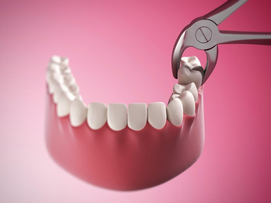 Illustration of tooth extraction | Dentist Barrie ON