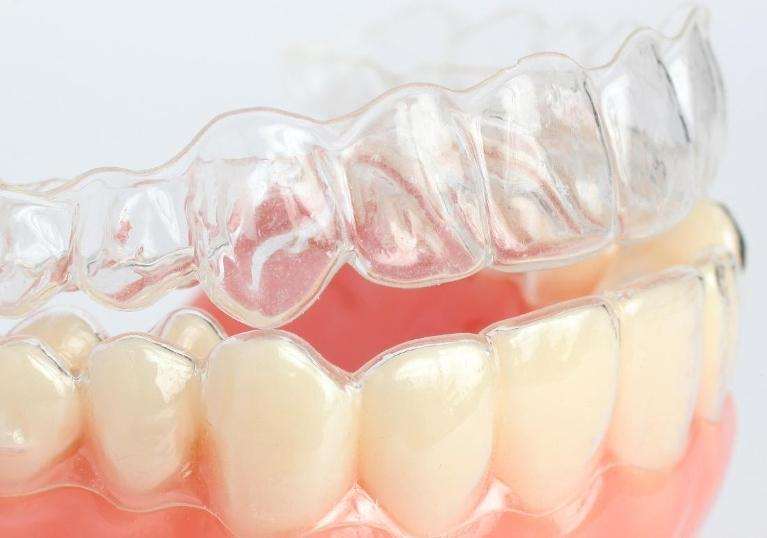 Close up of invisalign clear aligners | Dentist Barrie ON