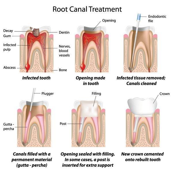 Root canal procedure | dentist barrie on