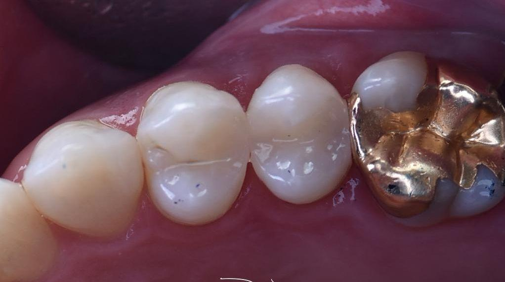 Close up of teeth after fillings | Barrie ON Dentist