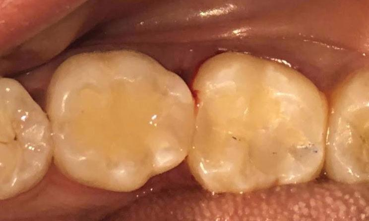 After photo of teeth with new resin composite | Dentist Barrie ON