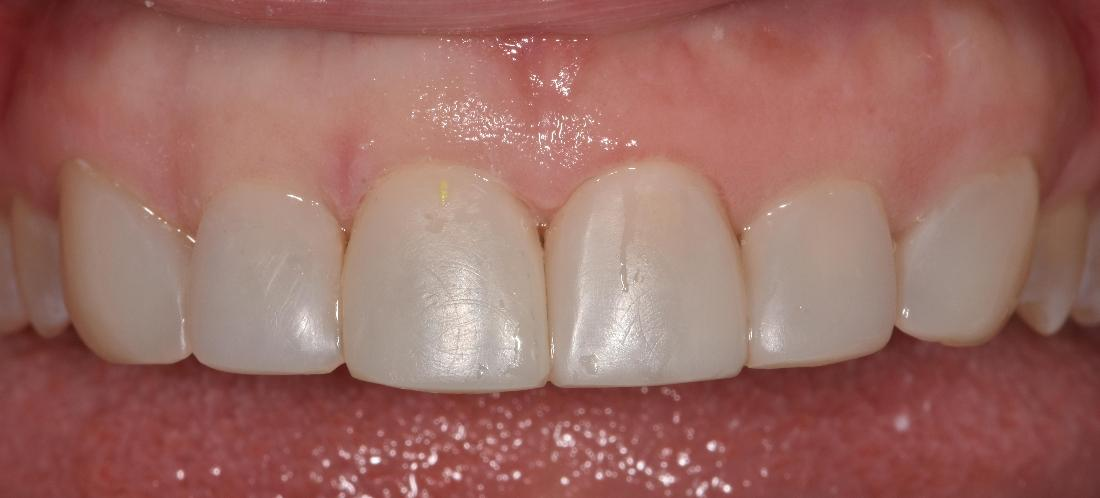 Close up of smile after veneers | Park Place Dental