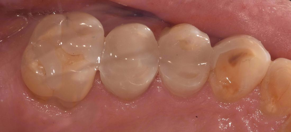 White fillings on tooth | Barrie ON Dentist