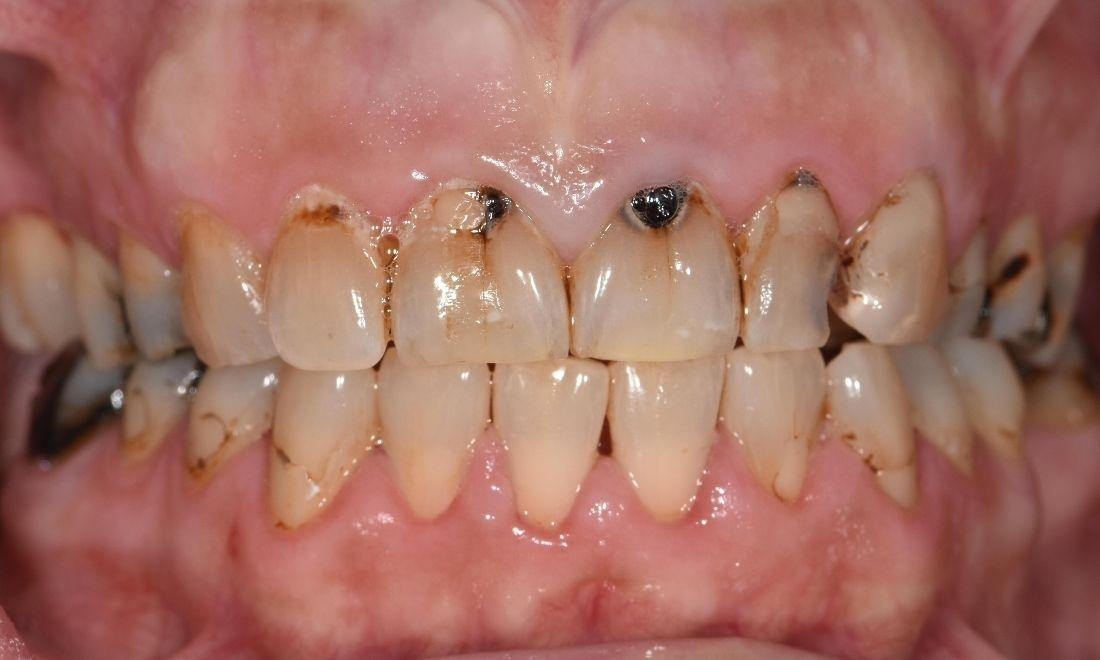 Close Up of smile after basic cleaning | Dentist Barrie ON