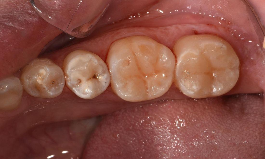 After Tooth Coloured Fillings | Dentist Barrie ON