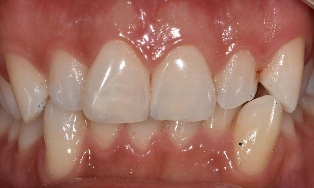After photo of broken teeth fixed with resin | Barrie ON Dentist