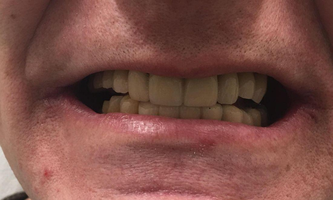 Close up of smile after dental implants | Dentist Barrie ON