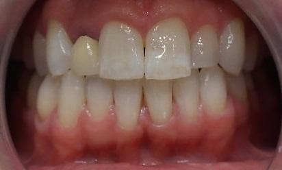 Close up of smile before crowns | Park Place Dental