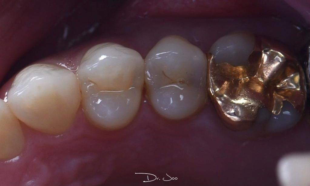 Close up of teeth before fillings | Barrie ON Dentist