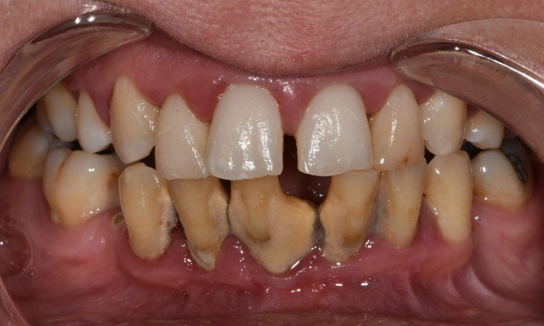 Close up of worn teeth | Barrie ON Dentist