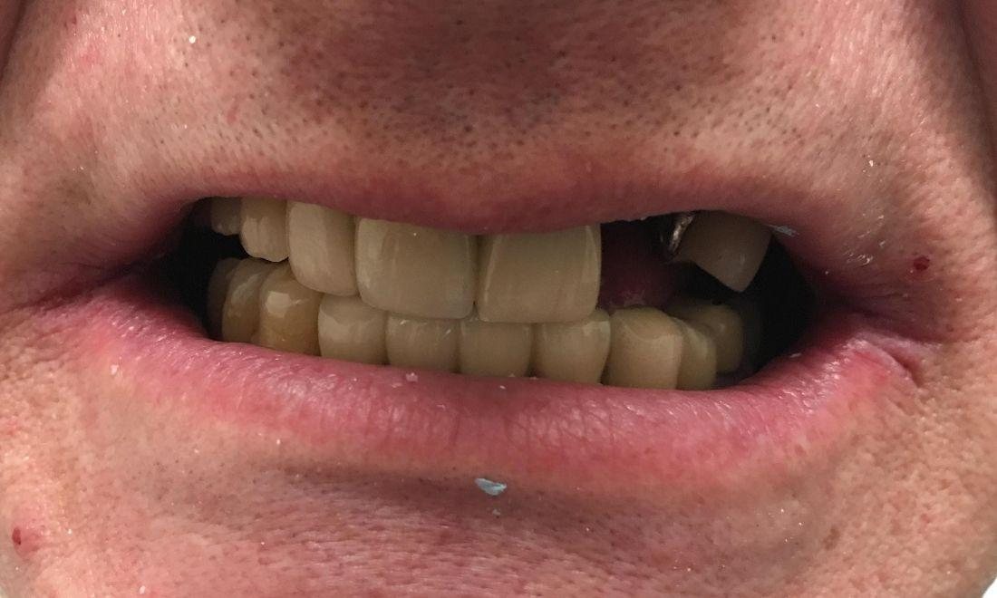 Close up of smile missing teeth | Dentist Barrie ON
