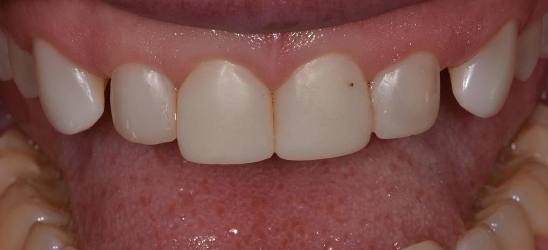 Close up of smile before veneers | Park Place Dental