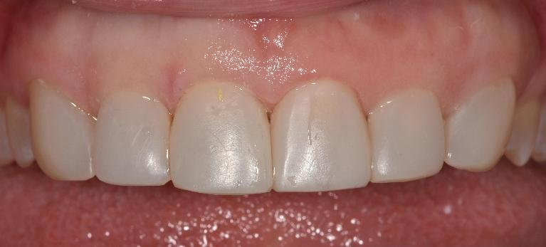 Tooth-colour-composite-veneer-After-Image