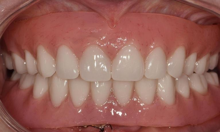 Full-mouth-rehabilitation-using-dentures-After-Image