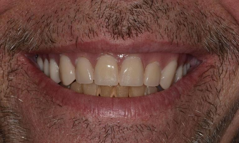 Full-Mouth-Treatment-After-Image