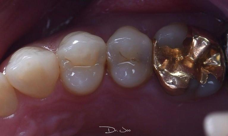 Composite-Restorations-Before-Image