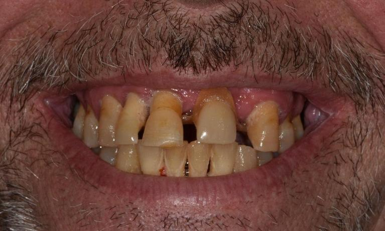 Full-Mouth-Treatment-Before-Image