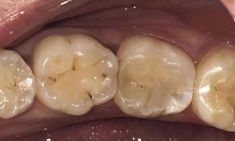 Tooth-Coloured-Fillings-Before-Image