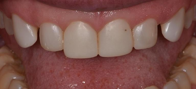 Tooth-colour-composite-veneer-Before-Image