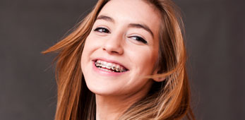 Park Place Dental | Invisalign and Braces